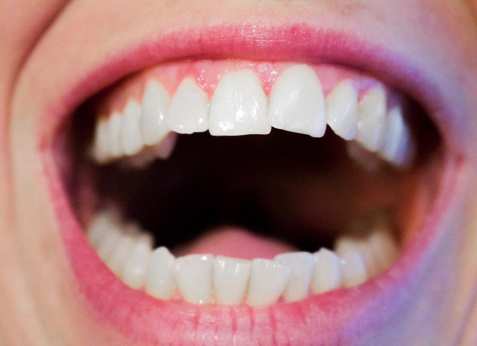 Pansement dentaire : ce qu'il faut savoir
