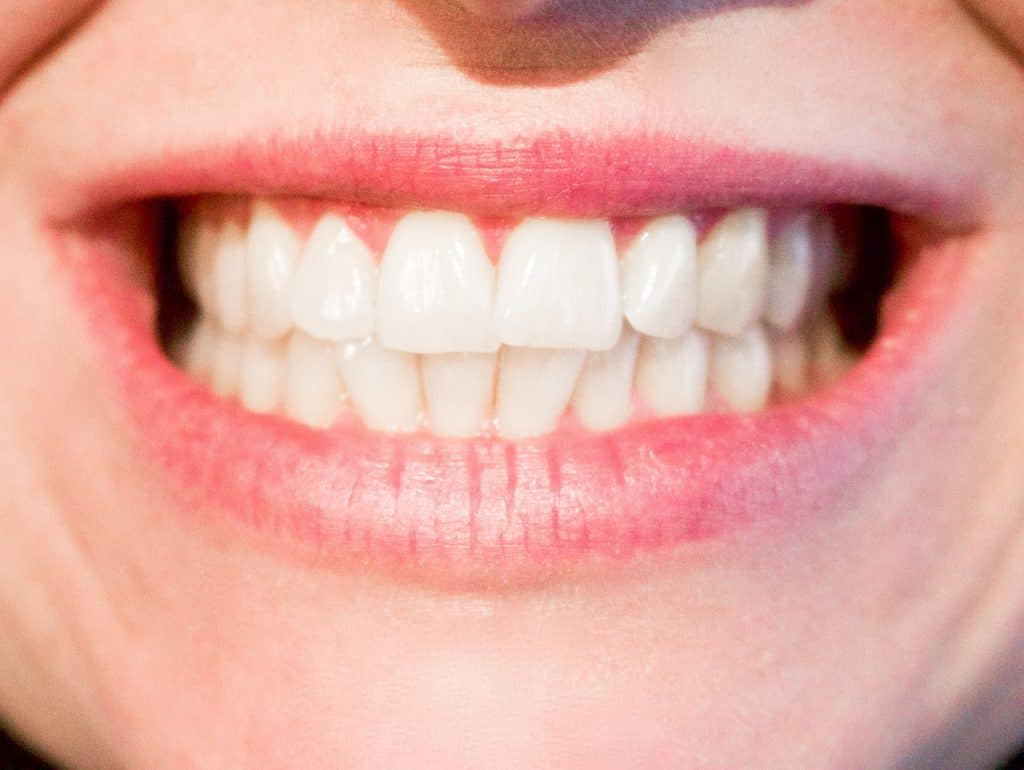 Blanchir dents : comment faire ?
