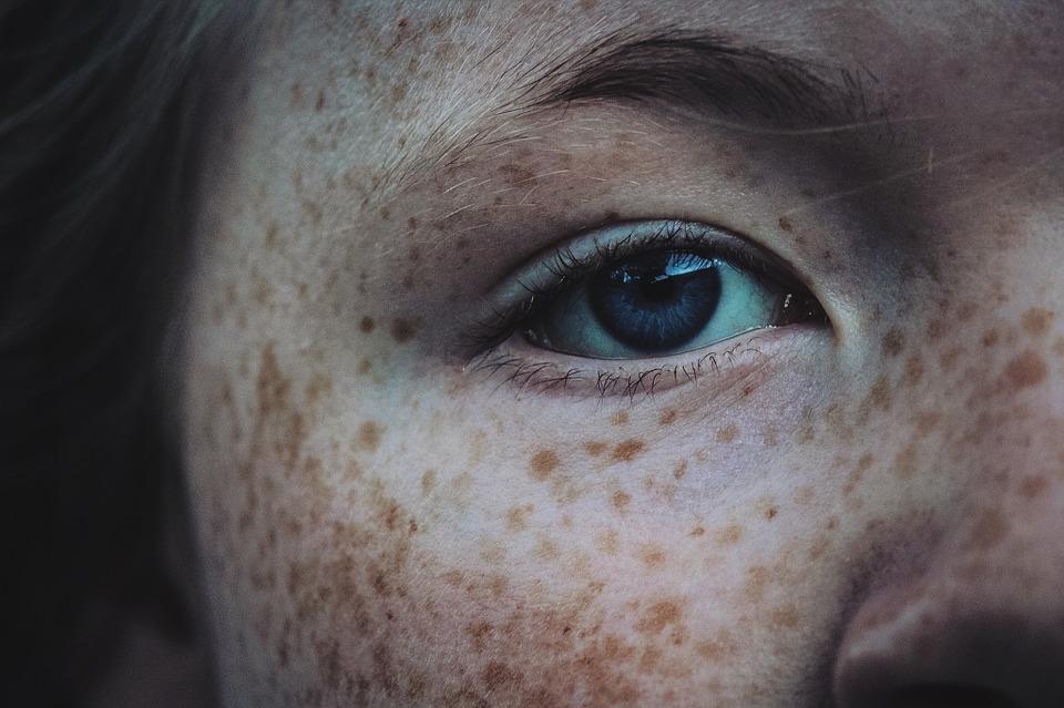 Tache brune visage : comment s'en débarrasser ?