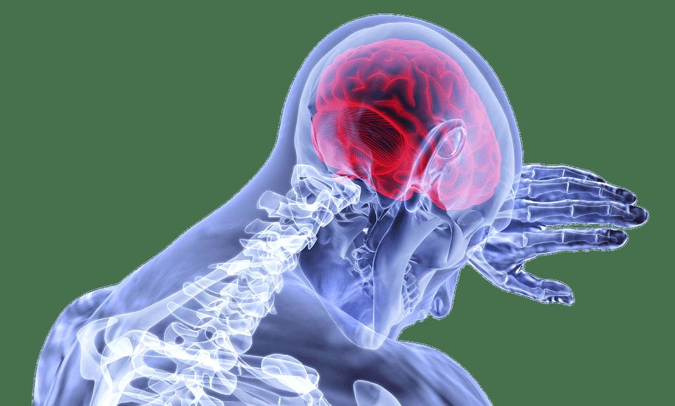 Symptome tumeur cerveau: Comment en reconnaître une ?