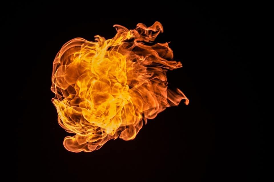 Que mettre sur une brûlure : découvrez nos astuces