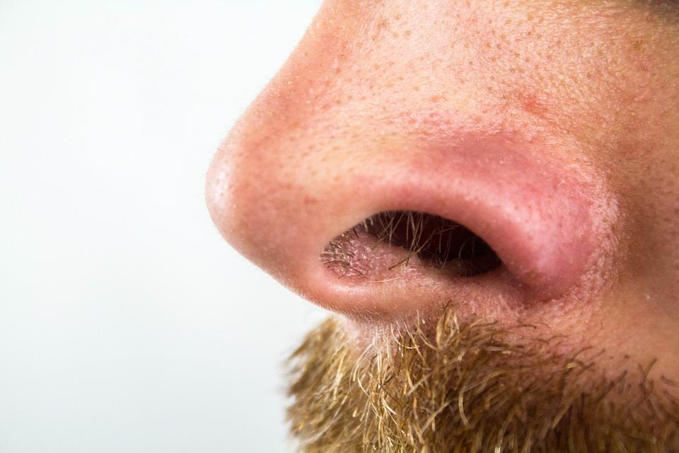 Gros point noir sur le nez: quel le meilleur traitement pour s'en débarrasser?