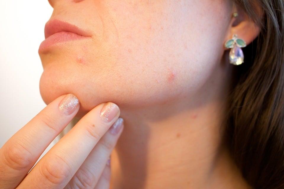 Boutons blancs sur le corps : causes et traitements