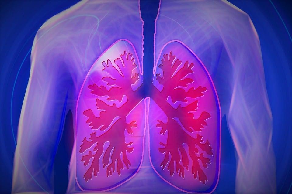 Cancer du poumon traitement: les meilleurs traitements