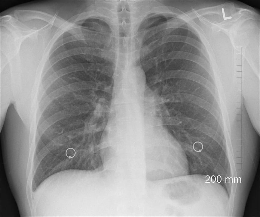 Maladie des poumons : comment faire pour mieux la soigner ?
